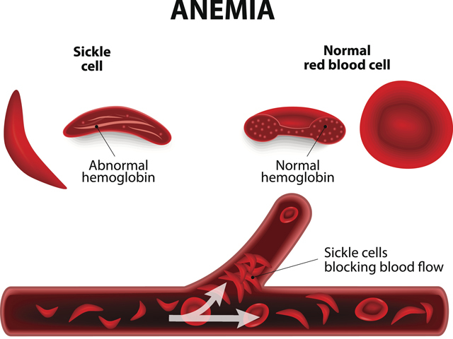 Sickle cell anemia_ThinkstockPhotos